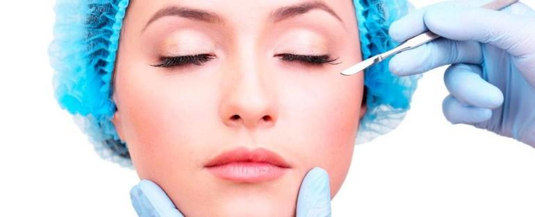 Cirurgia para remoção de Cicatrizes