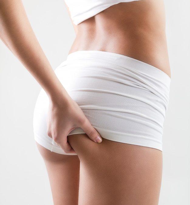 Entenda como é feita a gluteoplastia e suas indicações
